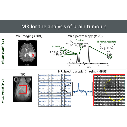Diseño de un sistema de apoyo a la decisión en oncología clínica basado en métodos avanzados de soft computing
